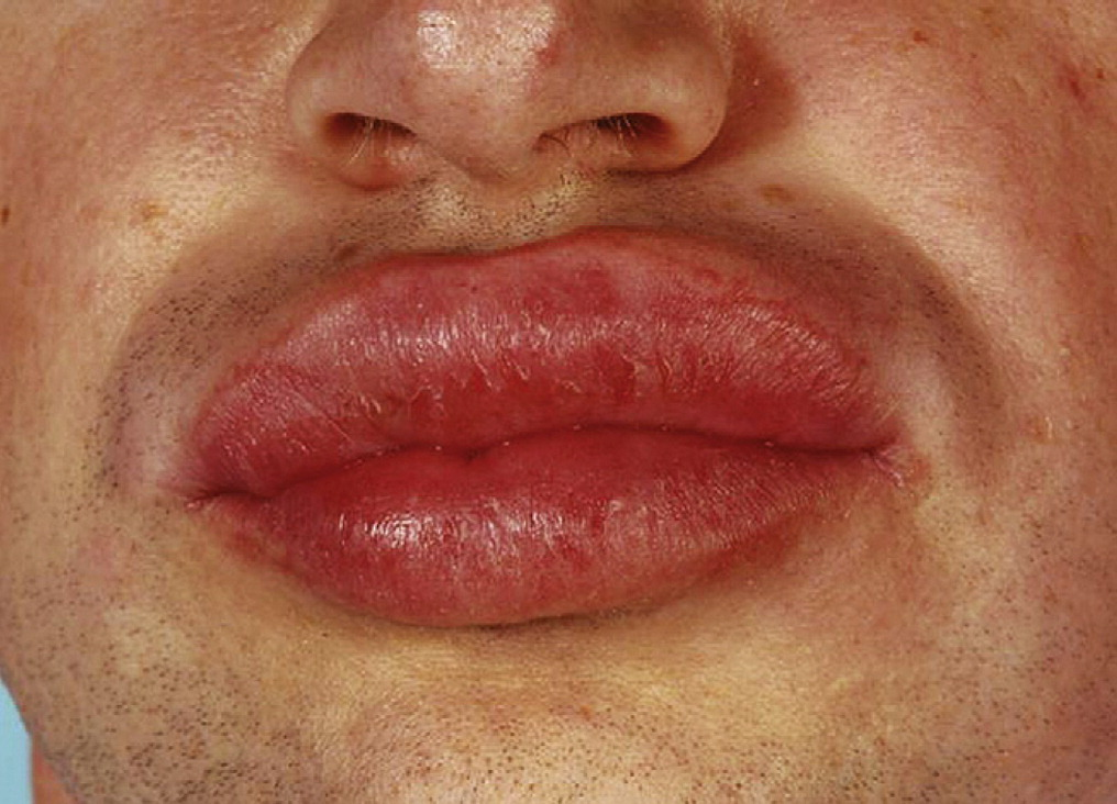 Disorders Of The Mouth